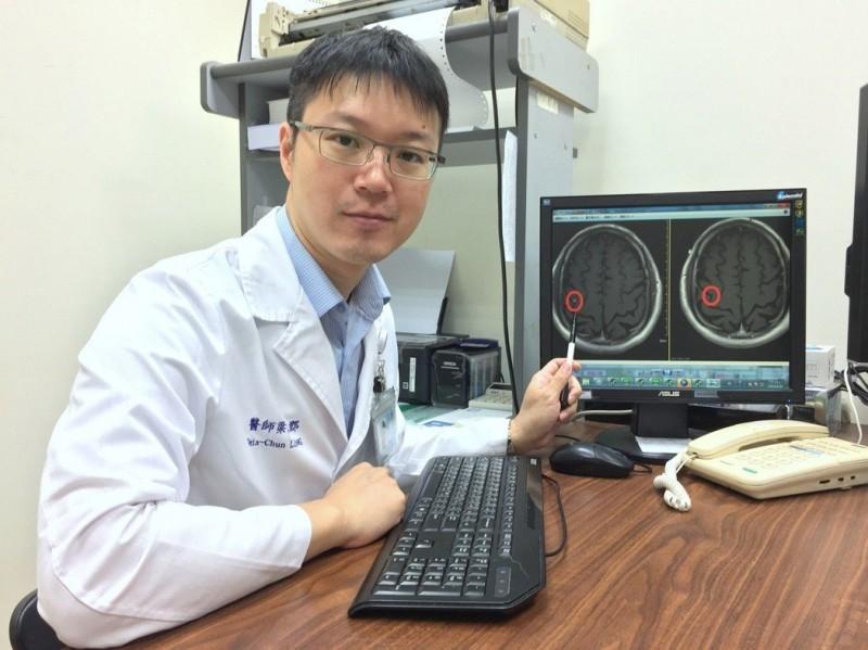 不宜放射和化學治療腦腫瘤 標靶光子刀奏效