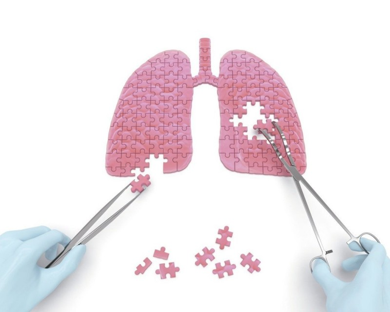民歌手葉佳修罹患肺癌 醫師這樣說