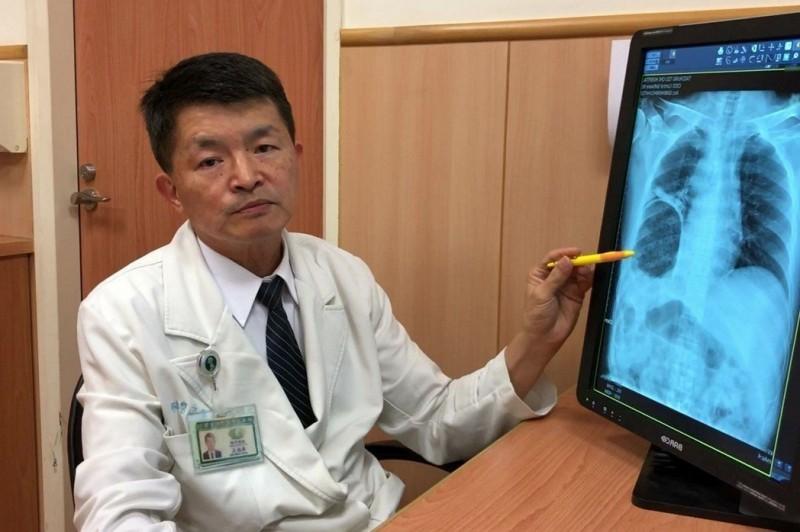 直腸癌患者排便太用力 胃竟跑到胸腔內