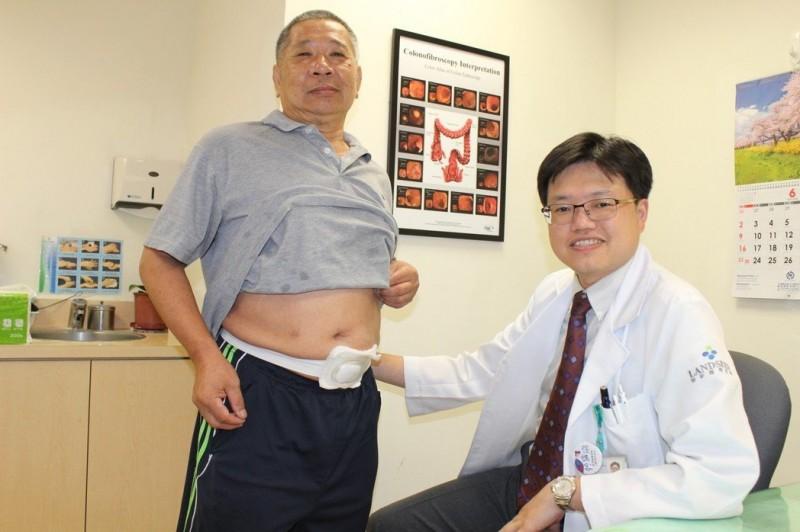 腸癌友大方掀肚皮 破解患者對人工肛門迷思