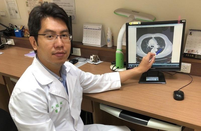 健檢發現肺結節等於有肺癌?醫:需進一步就醫確認