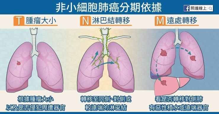 多年居國人癌症死亡率第一名,肺癌第三期怎麼辦?醫師圖文解說