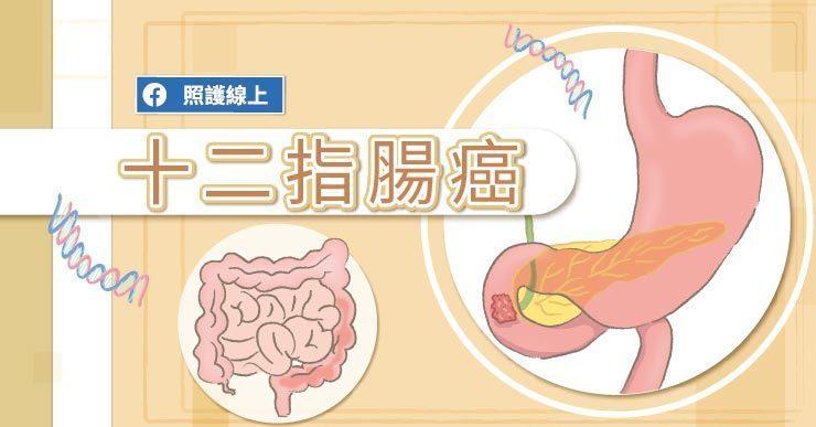 蕭淑慎肚子痛還以為是肌肉拉傷!醫師圖文解說十二指腸癌