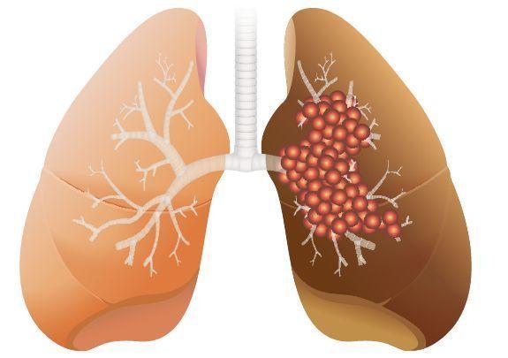 對抗晚期肺腺癌 治療超前部署