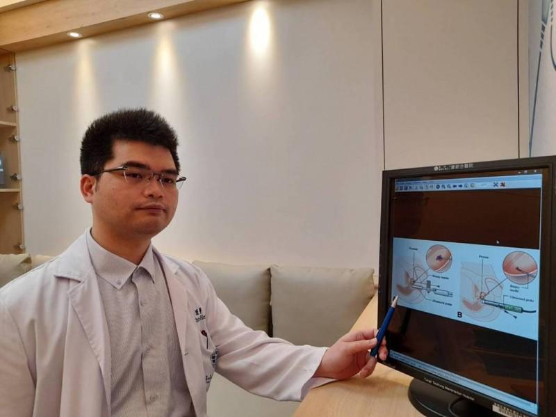攝護腺癌檢查 新式攝護腺切片精準更安全