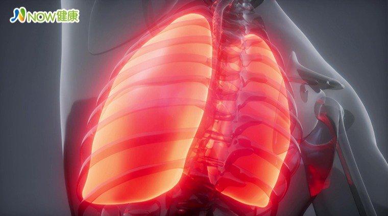 家裡親人確診肺癌,你的罹癌機率增! 6成發現已晚期,這項危險因子要特別注意